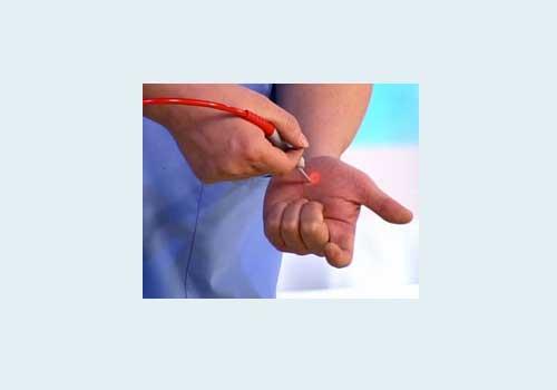 Как избавиться от бородавки на пальце