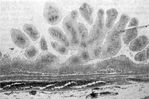малышева о паразитах в организме