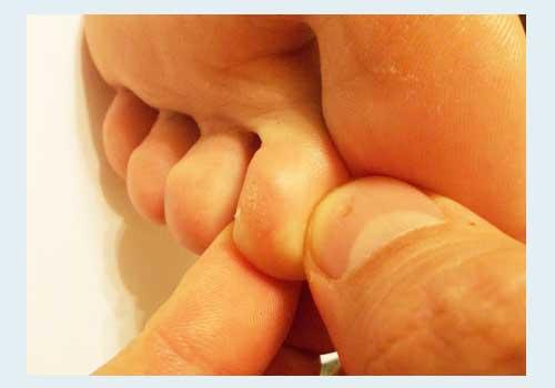 шипица на пальце ноги